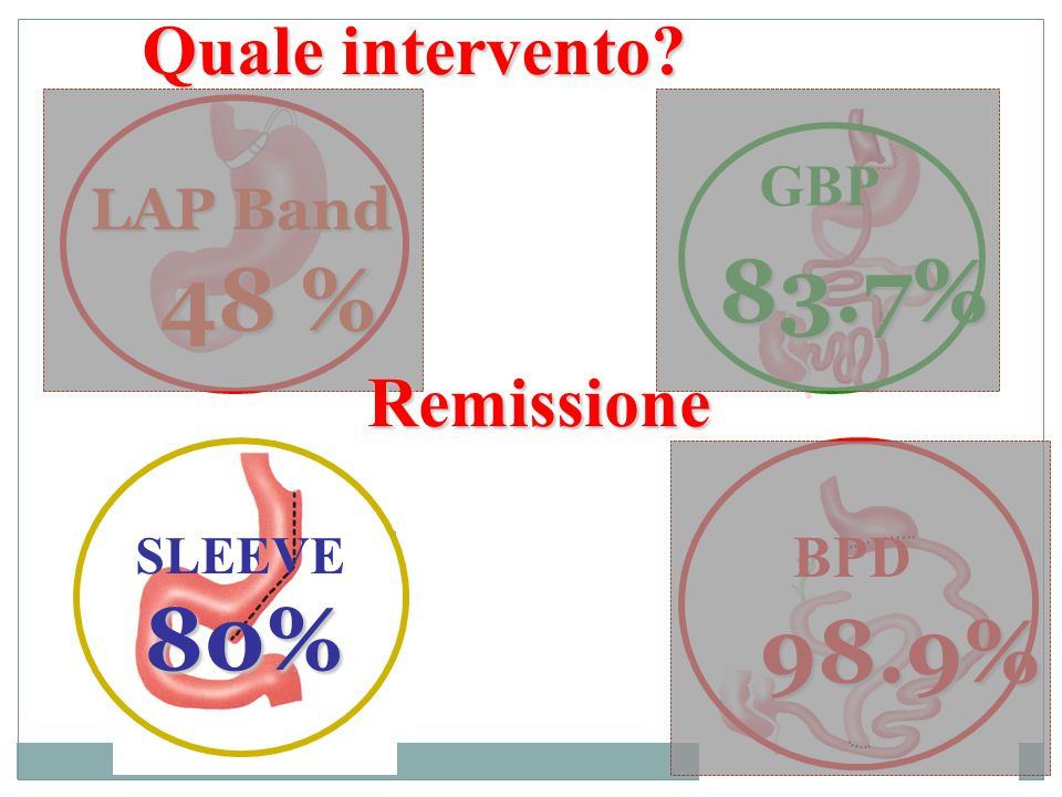83.7% 48 % 80% 98.9% Quale intervento Remissione GBP LAP Band BPD