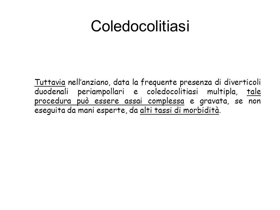 Coledocolitiasi