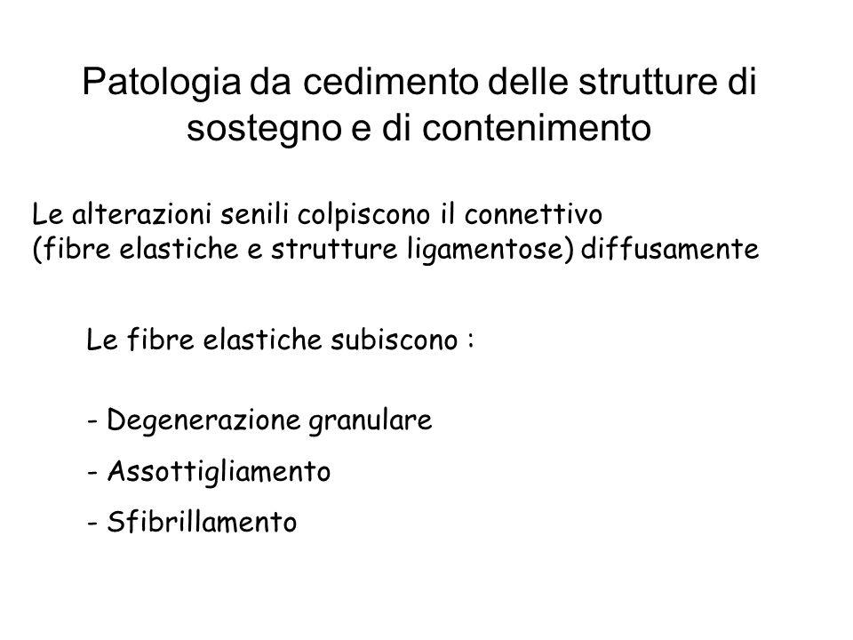 Patologia da cedimento delle strutture di sostegno e di contenimento