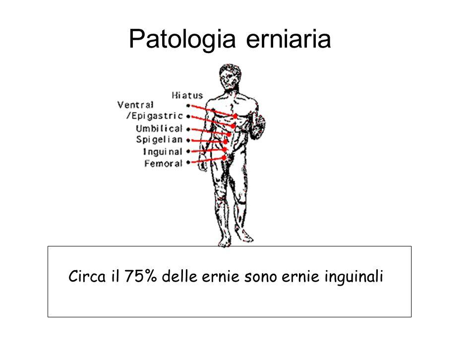 Patologia erniaria Circa il 75% delle ernie sono ernie inguinali