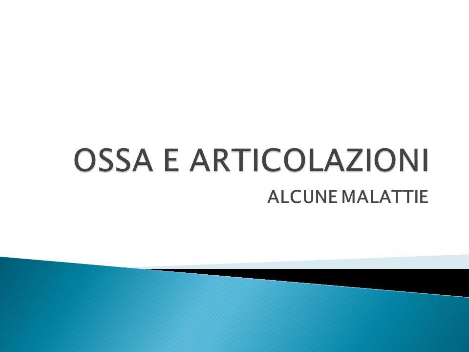 OSSA E ARTICOLAZIONI ALCUNE MALATTIE