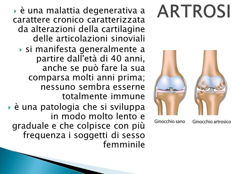 ARTROSI è una malattia degenerativa a carattere cronico caratterizzata da alterazioni della cartilagine delle articolazioni sinoviali.