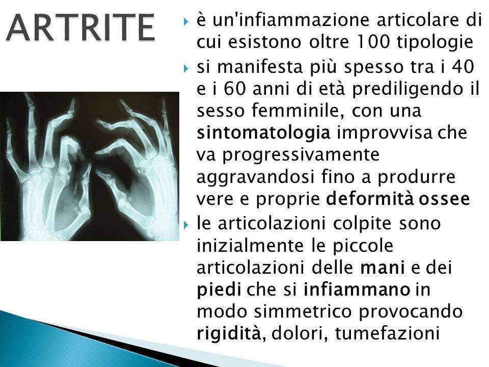 ARTRITE è un infiammazione articolare di cui esistono oltre 100 tipologie.