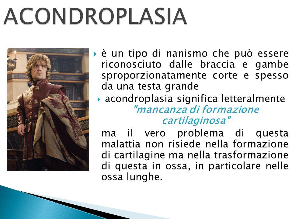 ACONDROPLASIA è un tipo di nanismo che può essere riconosciuto dalle braccia e gambe sproporzionatamente corte e spesso da una testa grande.
