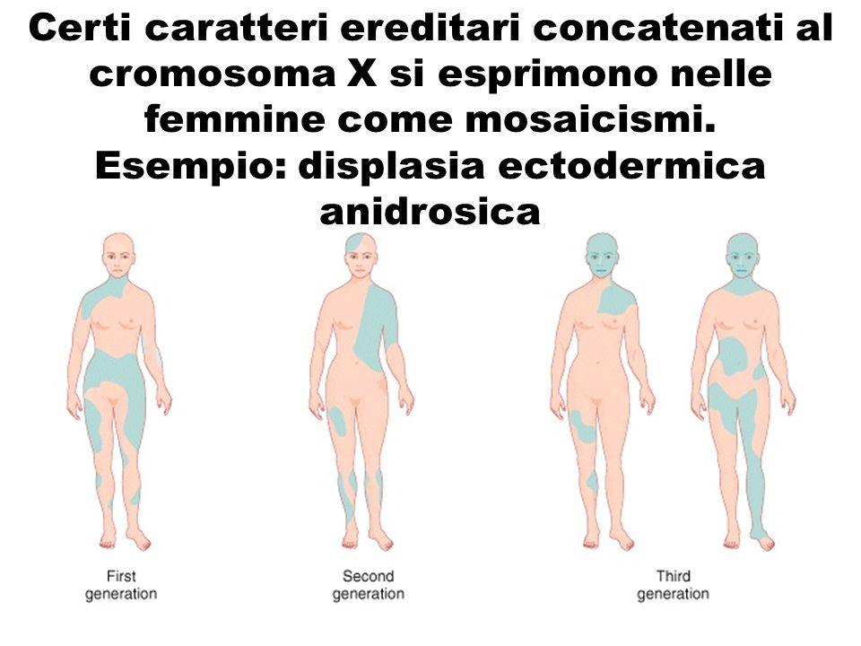 Esempio: displasia ectodermica anidrosica