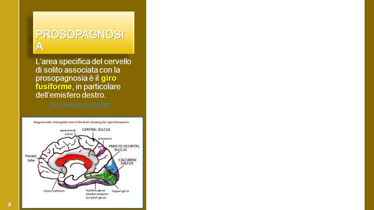 Prosopagnosia L'area specifica del cervello di solito associata con la prosopagnosia è il giro fusiforme, in particolare dell'emisfero destro.