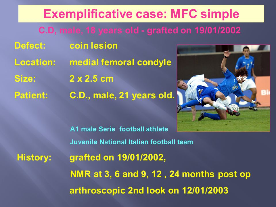 ** Exemplificative case: MFC simple