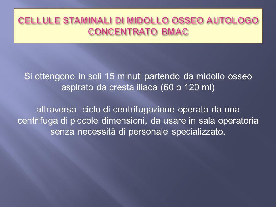 CELLULE STAMINALI DI MIDOLLO OSSEO AUTOLOGO CONCENTRATO BMAC