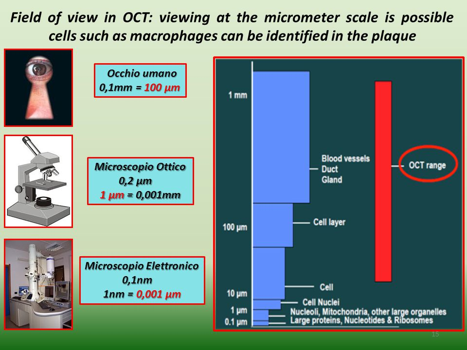 Field of view in OCT: viewing at the micrometer scale is possible cells such as macrophages can be identified in the plaque