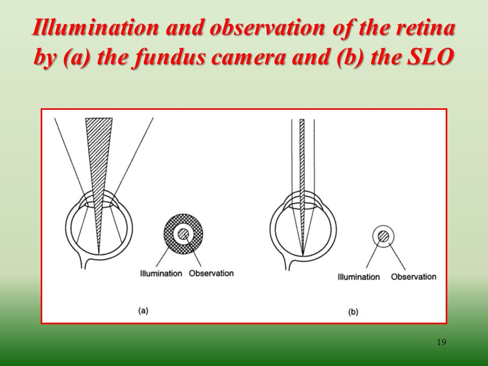 Illumination and observation of the retina by (a) the fundus camera and (b) the SLO