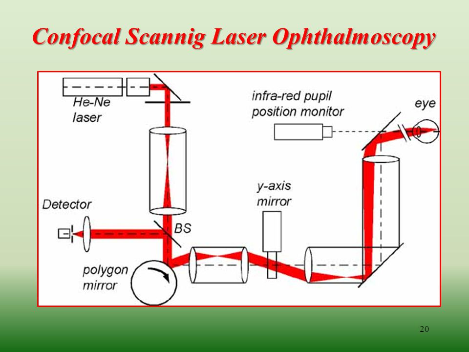 Confocal Scannig Laser Ophthalmoscopy