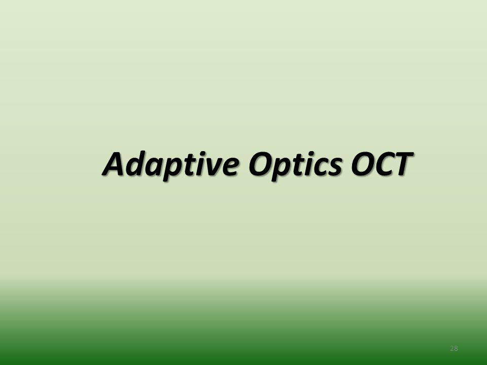 Adaptive Optics OCT