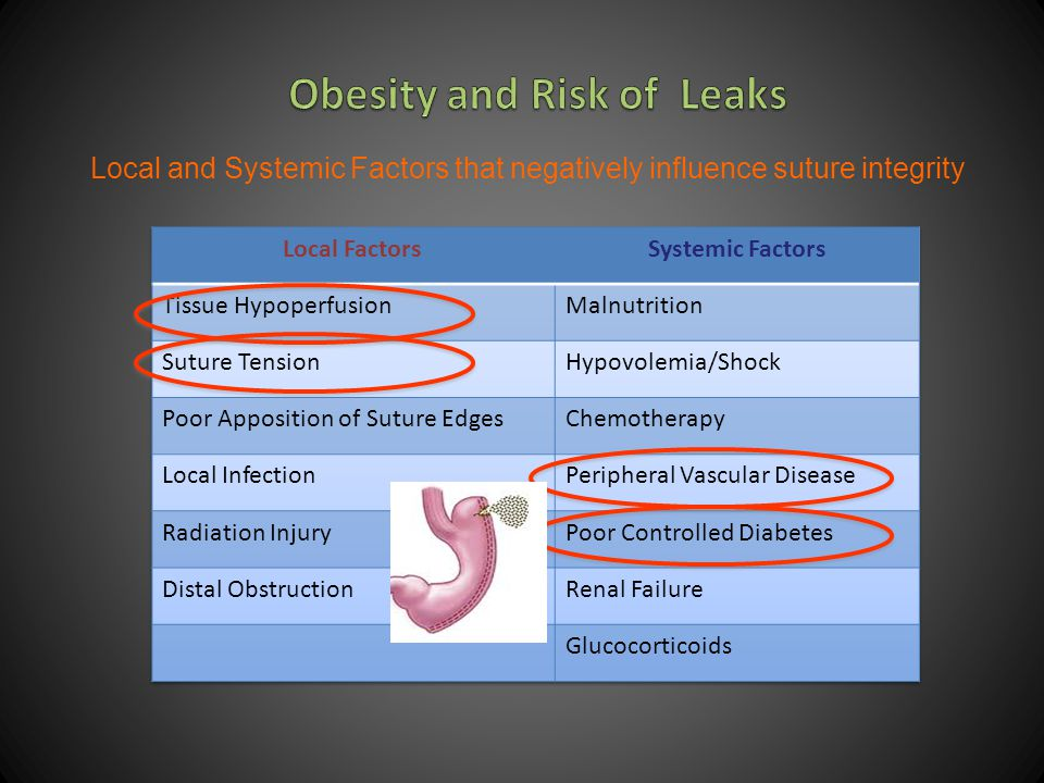 Obesity and Risk of Leaks