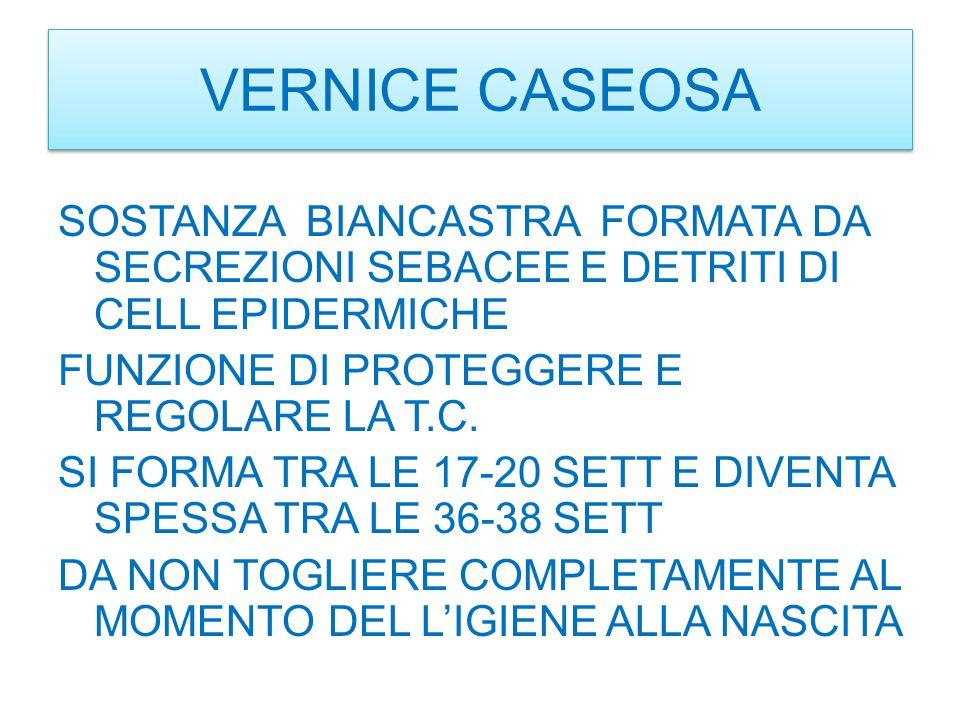 VERNICE CASEOSA
