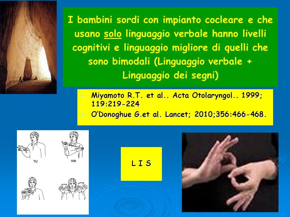 I bambini sordi con impianto cocleare e che usano solo linguaggio verbale hanno livelli cognitivi e linguaggio migliore di quelli che sono bimodali (Linguaggio verbale + Linguaggio dei segni)