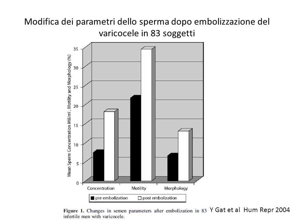 Modifica dei parametri dello sperma dopo embolizzazione del varicocele in 83 soggetti