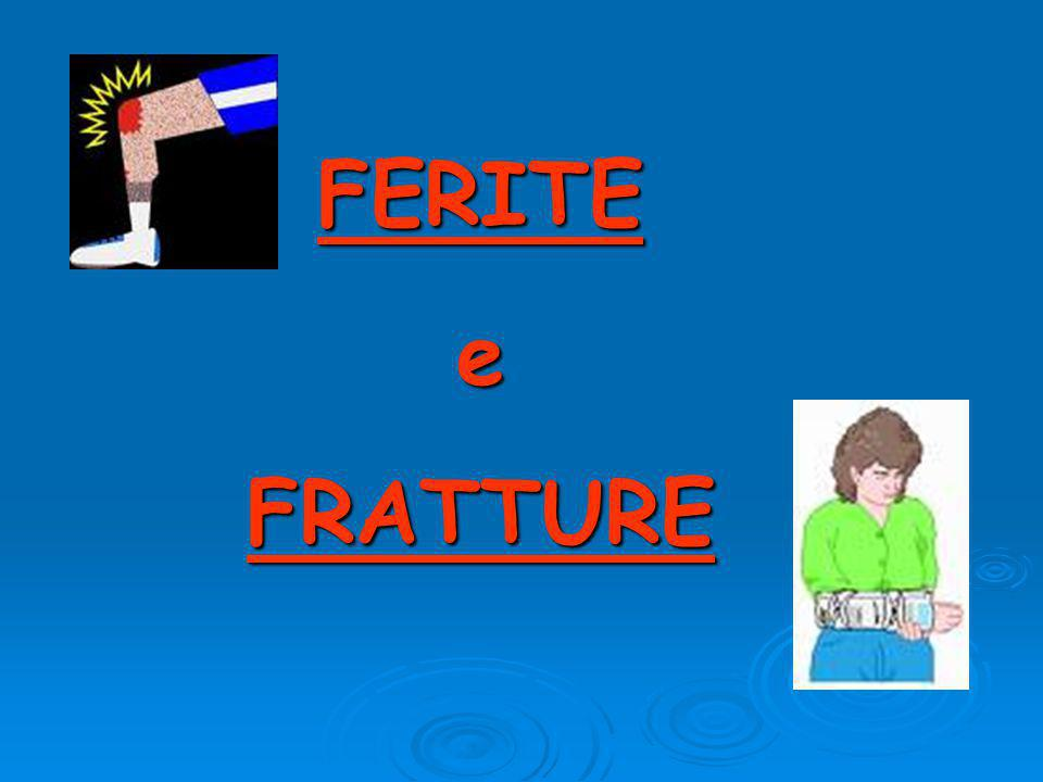 FERITE e FRATTURE