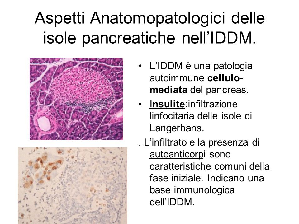 Aspetti Anatomopatologici delle isole pancreatiche nell'IDDM.