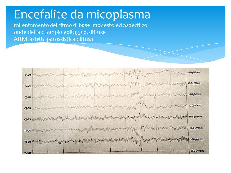 Encefalite da micoplasma rallentamento del ritmo di base modesto ed aspecifico onde delta di ampio voltaggio, diffuse Attività delta parossistica diffusa