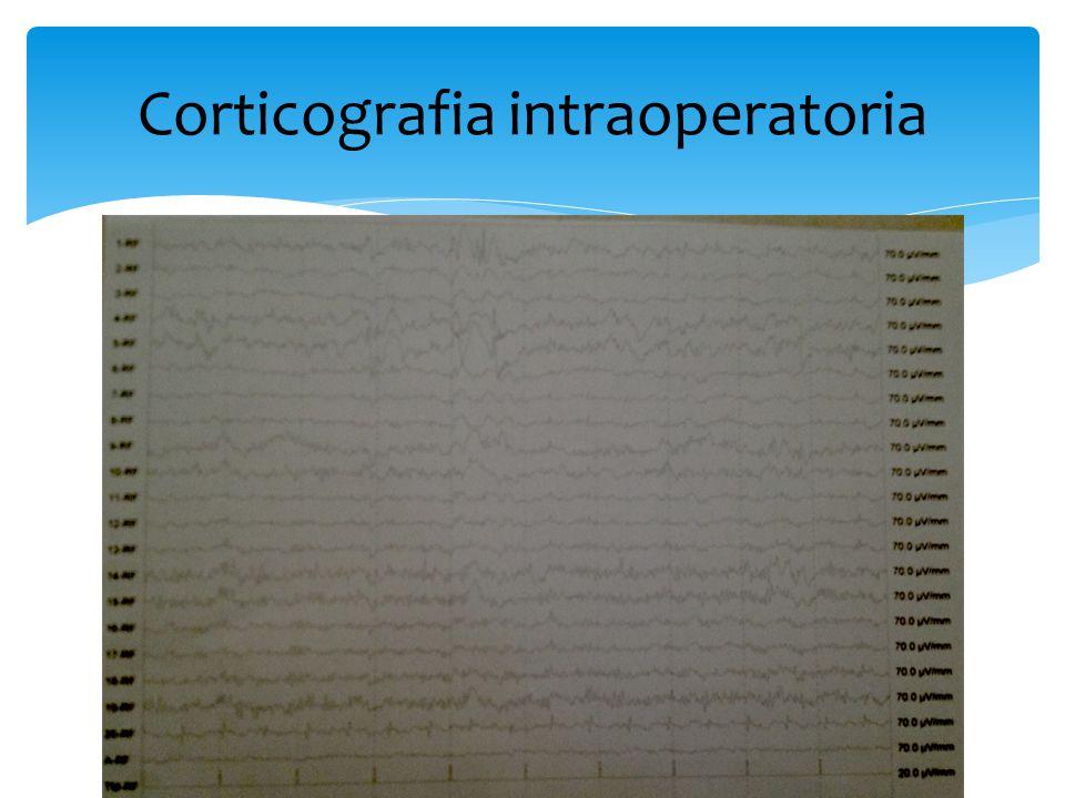 Corticografia intraoperatoria