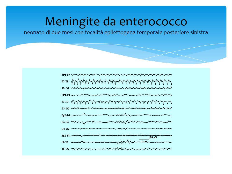 Meningite da enterococco neonato di due mesi con focalità epilettogena temporale posteriore sinistra