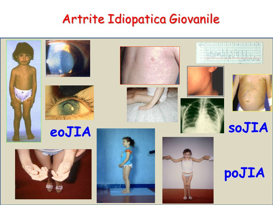soJIA eoJIA poJIA Artrite Idiopatica Giovanile
