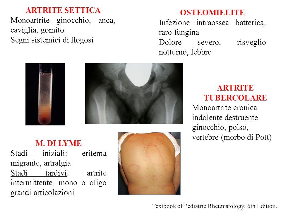 ARTRITE SETTICA OSTEOMIELITE ARTRITE TUBERCOLARE M. DI LYME