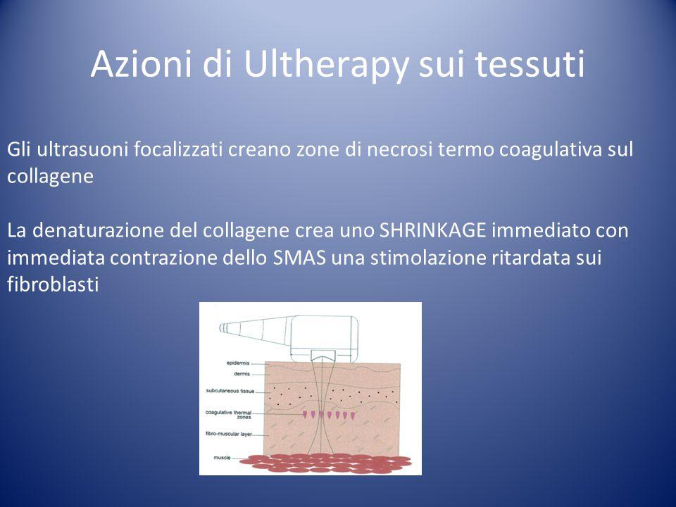 Azioni di Ultherapy sui tessuti