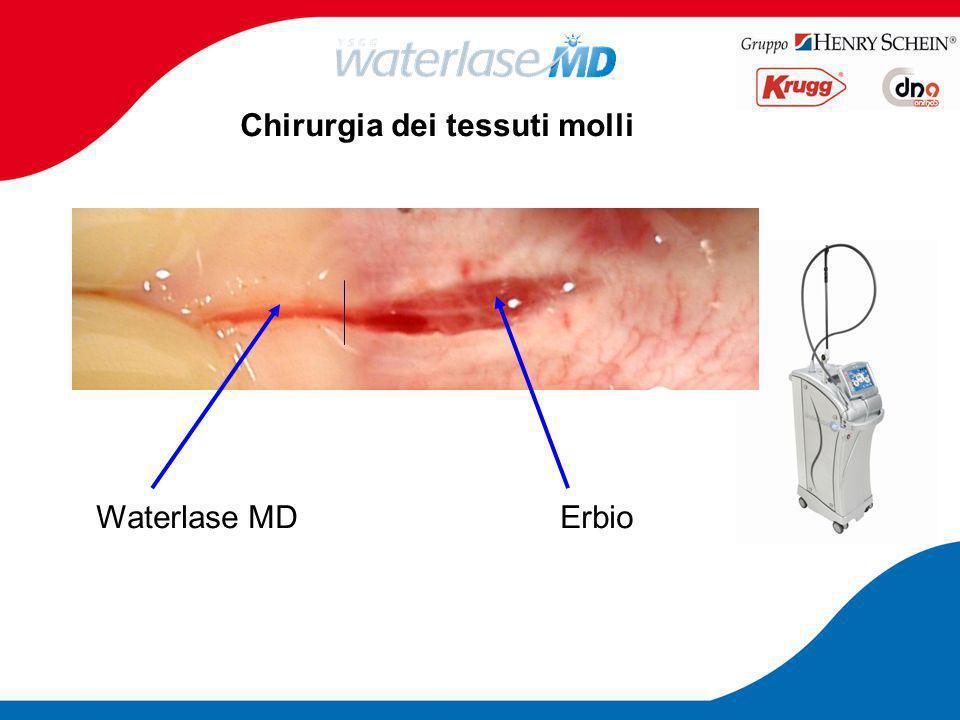 Chirurgia dei tessuti molli