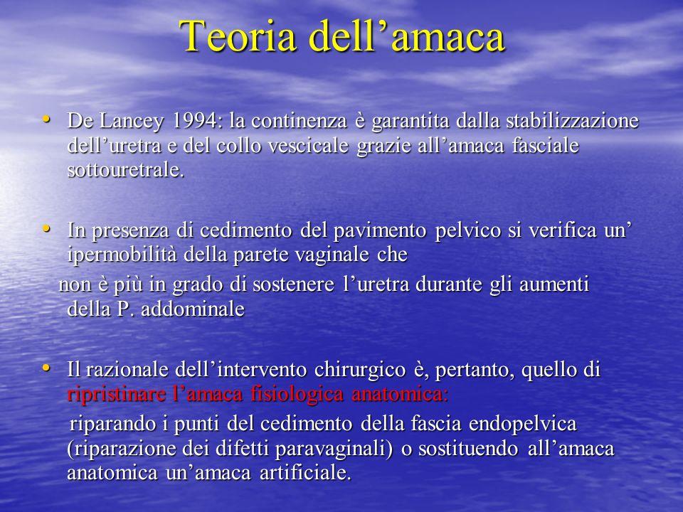 Teoria dell'amaca