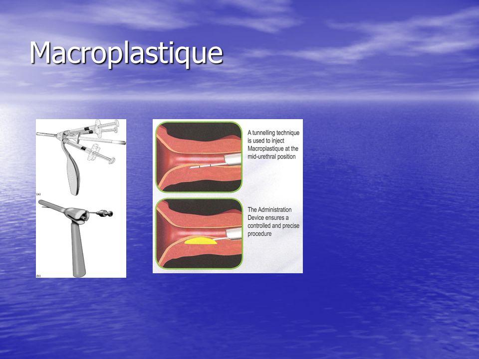 Macroplastique