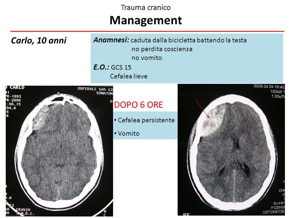 Trauma cranico Management
