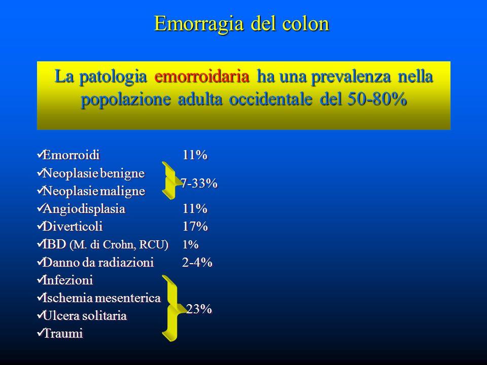 Emorragia del colon La patologia emorroidaria ha una prevalenza nella popolazione adulta occidentale del 50-80%
