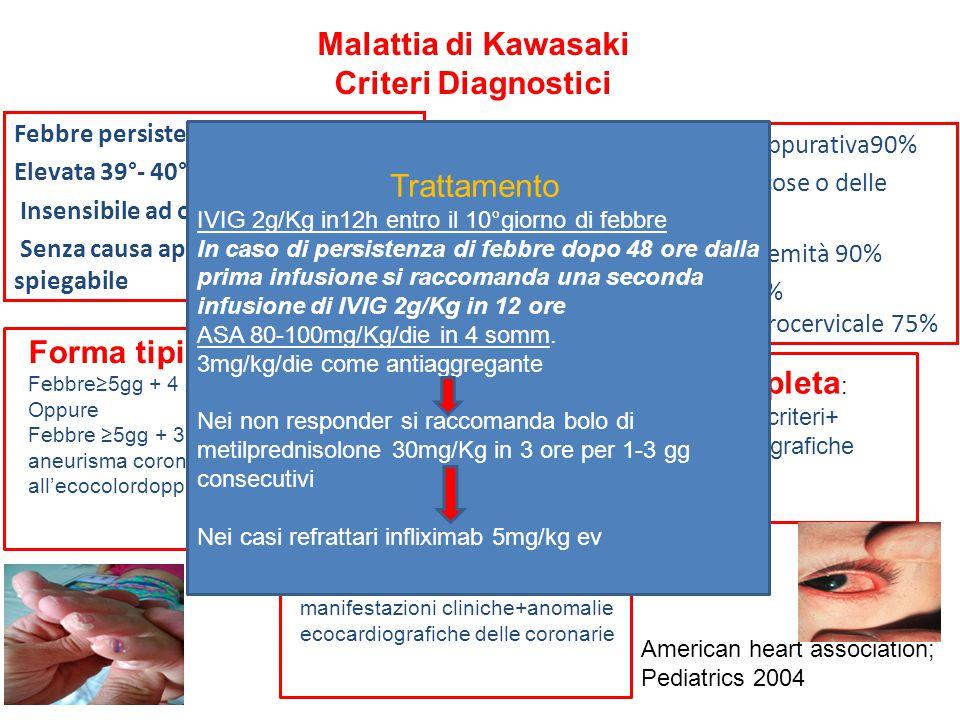 Malattia di Kawasaki Criteri Diagnostici