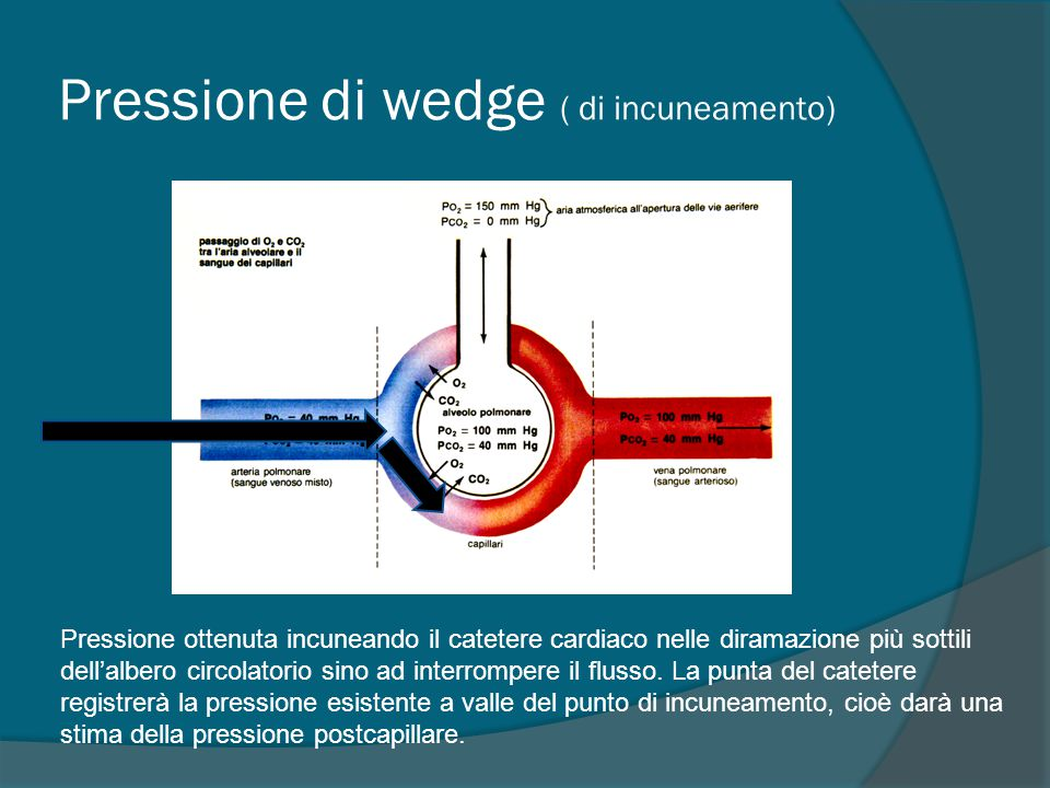 Pressione di wedge ( di incuneamento)