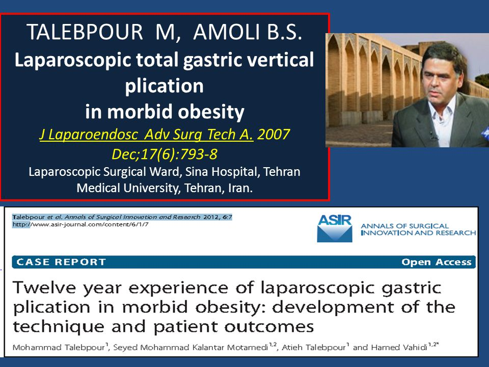 Laparoscopic total gastric vertical plication