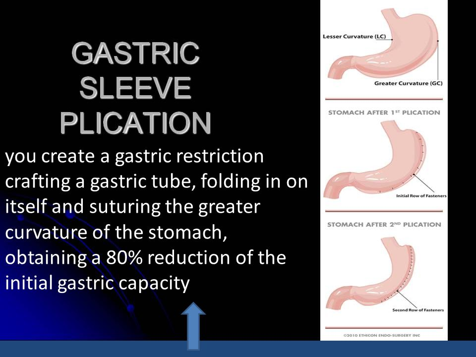 you create a gastric restriction crafting a gastric tube, folding in on itself and suturing the greater curvature of the stomach, obtaining a 80% reduction of the initial gastric capacity