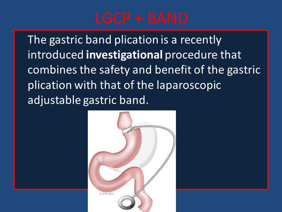 LGCP + BAND