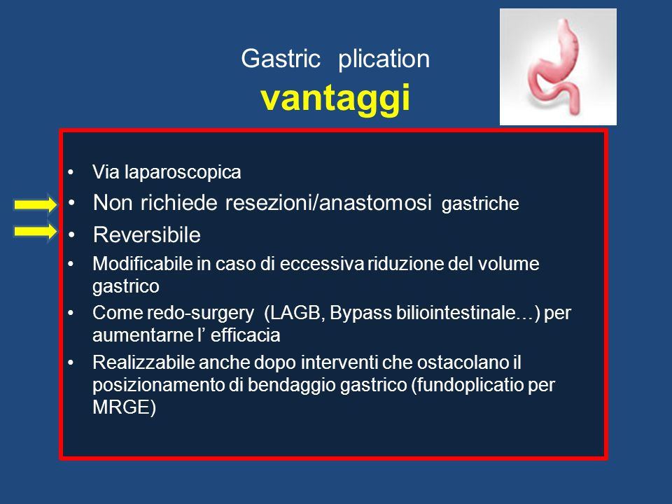 Gastric plication vantaggi