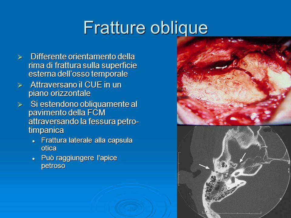 Fratture oblique Differente orientamento della rima di frattura sulla superficie esterna dell'osso temporale.