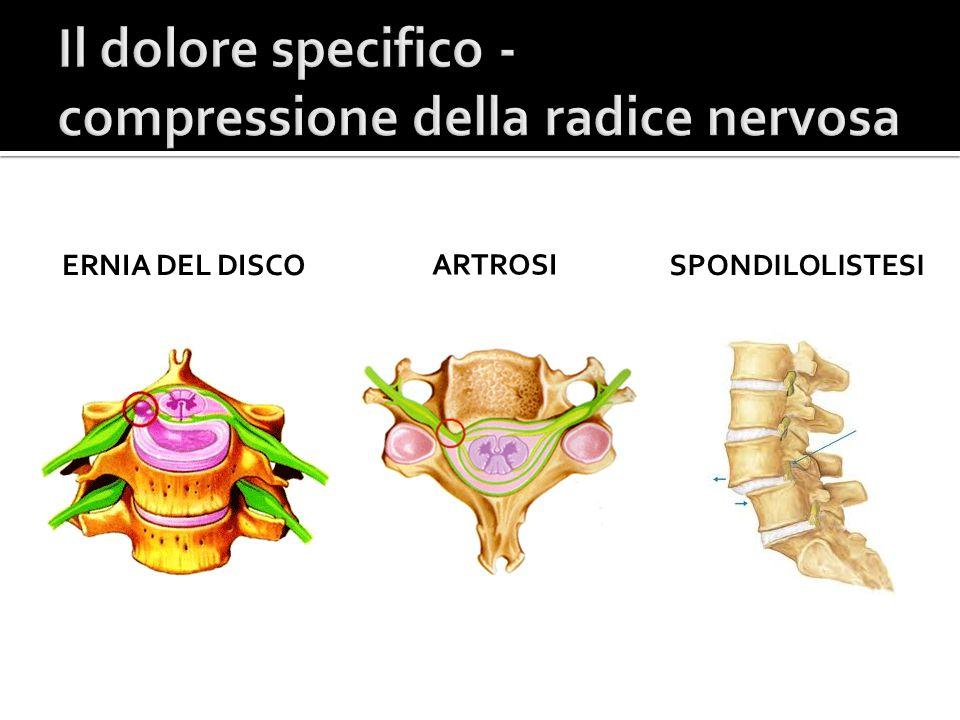 Il dolore specifico - compressione della radice nervosa