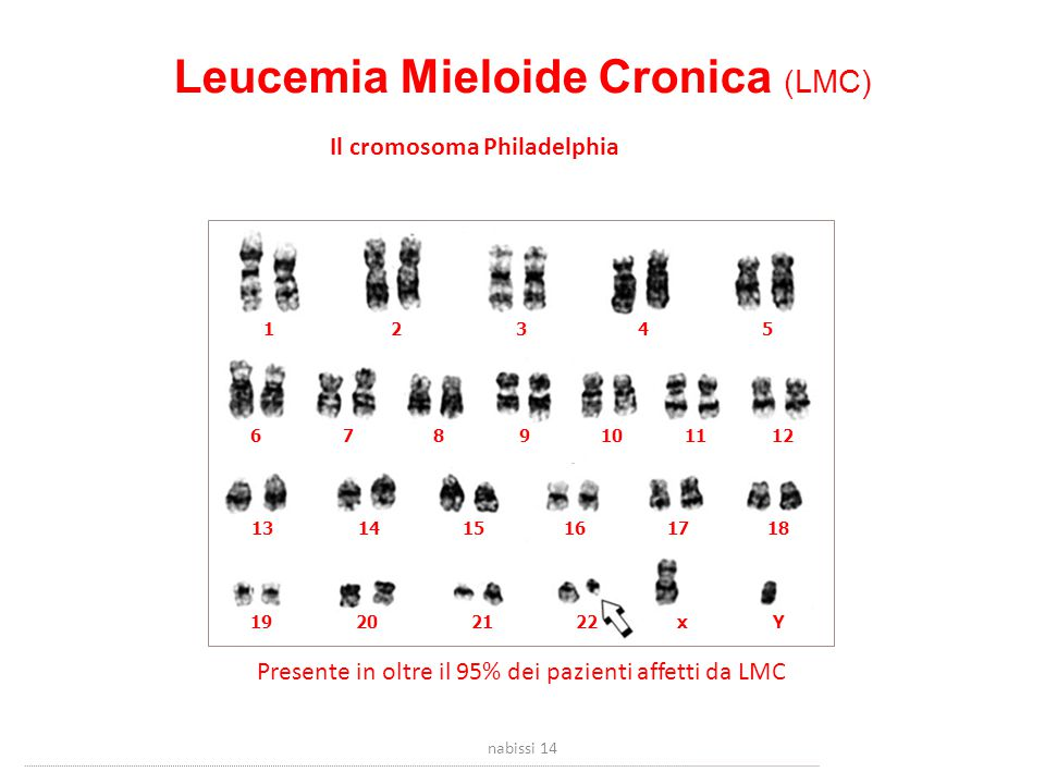 Il cromosoma Philadelphia