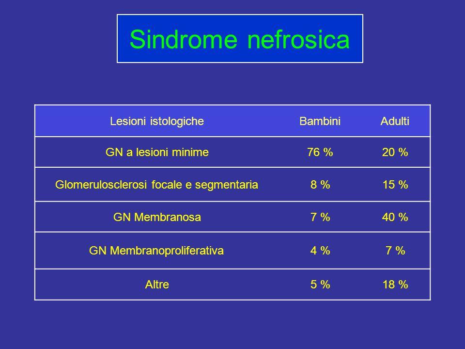 Sindrome nefrosica Lesioni istologiche Bambini Adulti