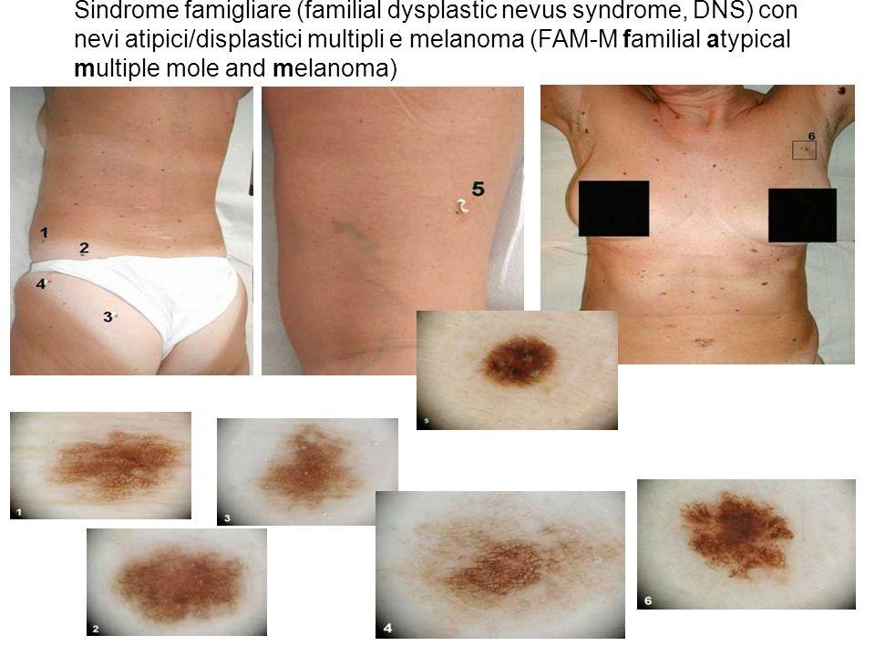 Sindrome famigliare (familial dysplastic nevus syndrome, DNS) con nevi atipici/displastici multipli e melanoma (FAM-M familial atypical multiple mole and melanoma)