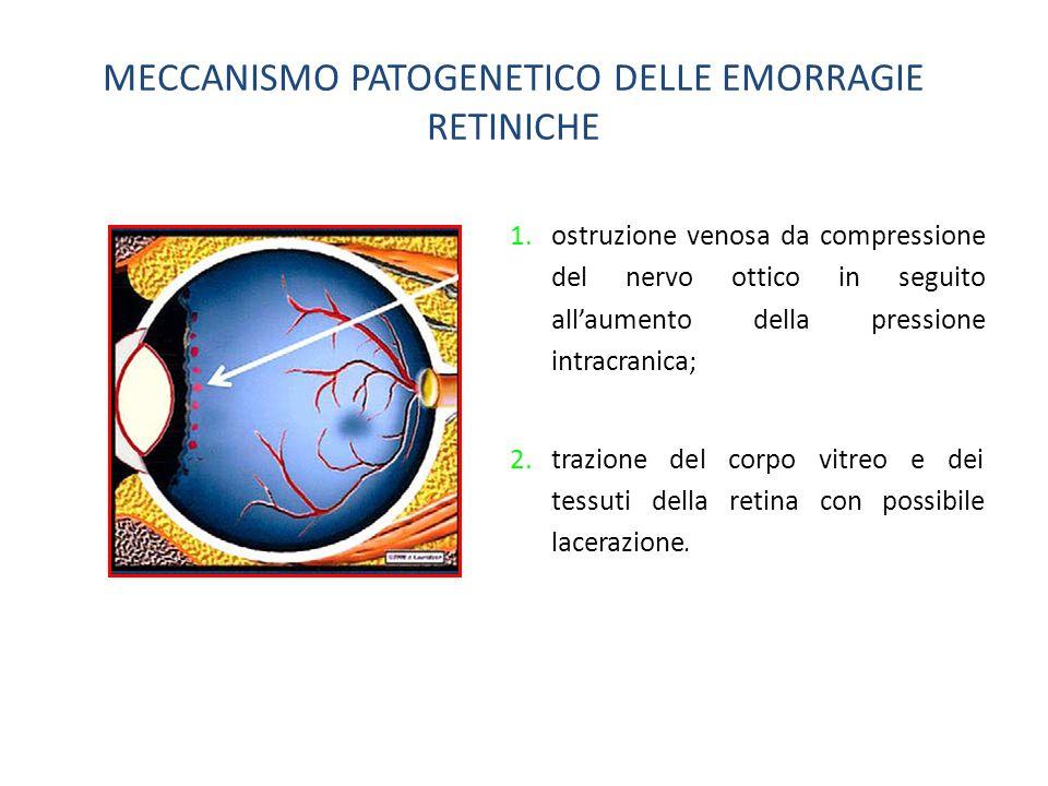 MECCANISMO PATOGENETICO DELLE EMORRAGIE RETINICHE