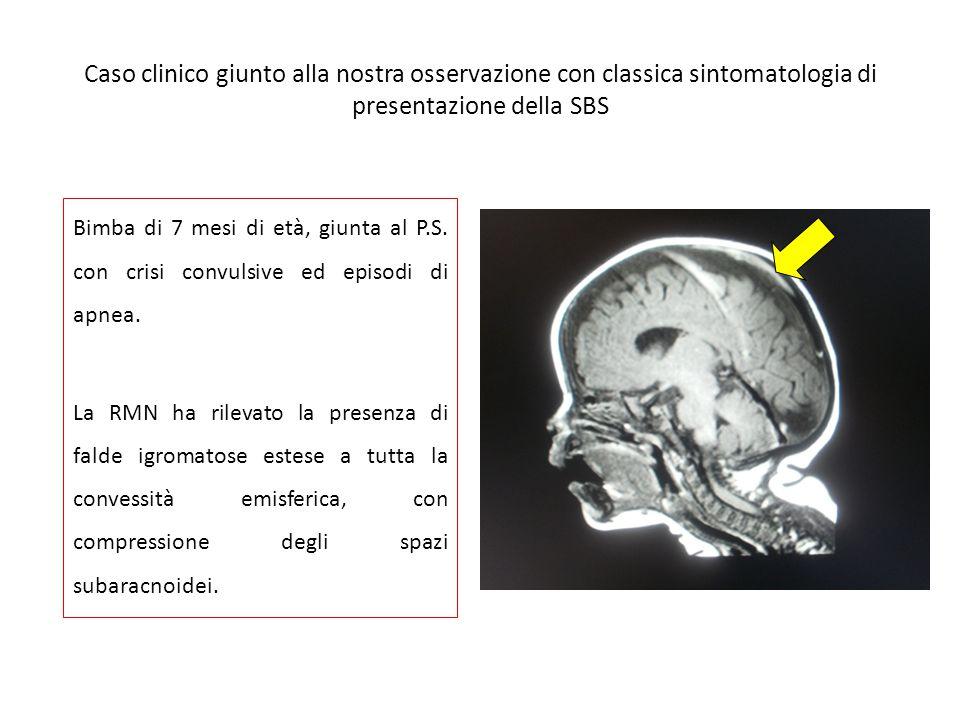 Caso clinico giunto alla nostra osservazione con classica sintomatologia di presentazione della SBS