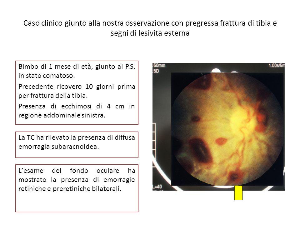 Caso clinico giunto alla nostra osservazione con pregressa frattura di tibia e segni di lesività esterna