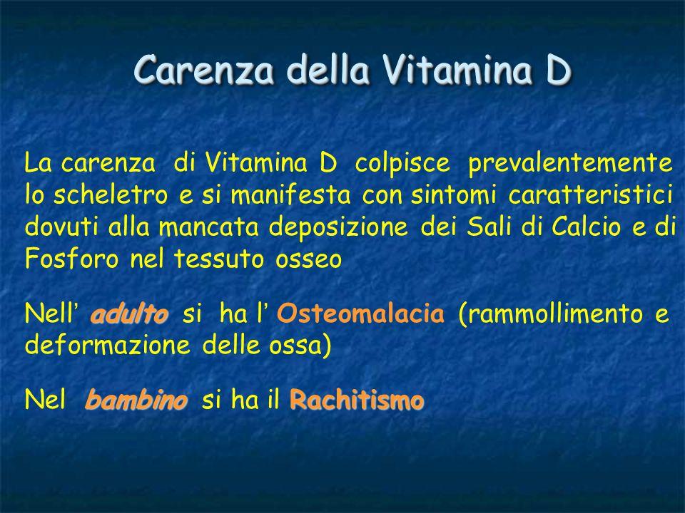 Carenza della Vitamina D
