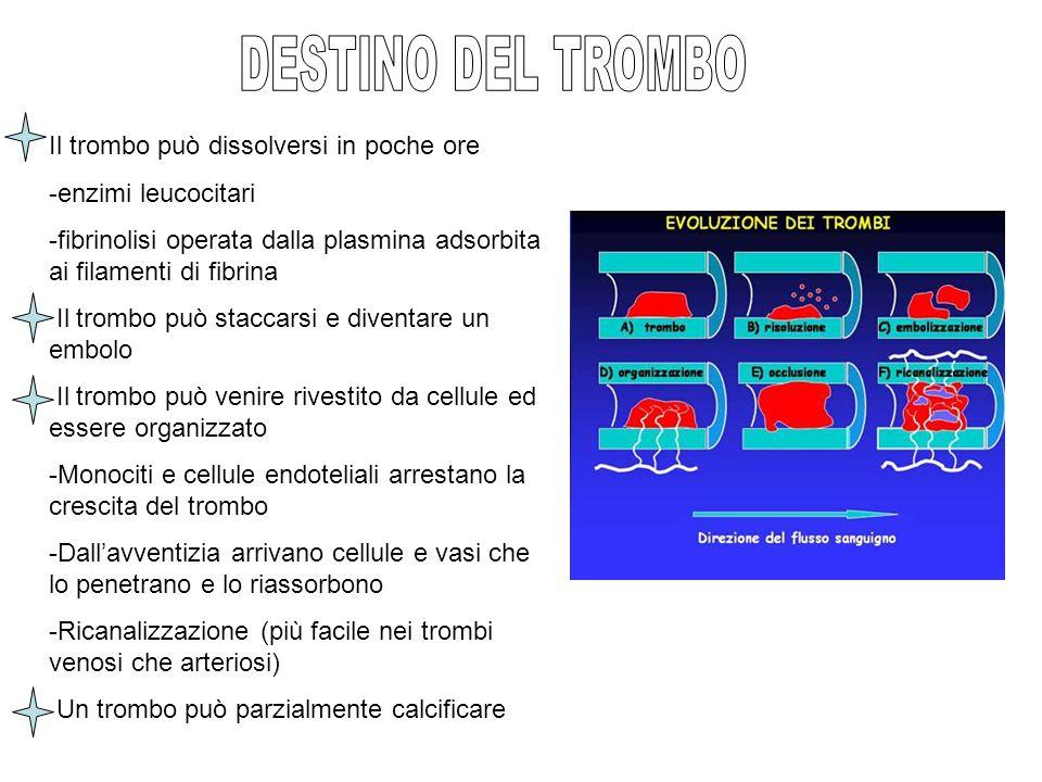 DESTINO DEL TROMBO Il trombo può dissolversi in poche ore
