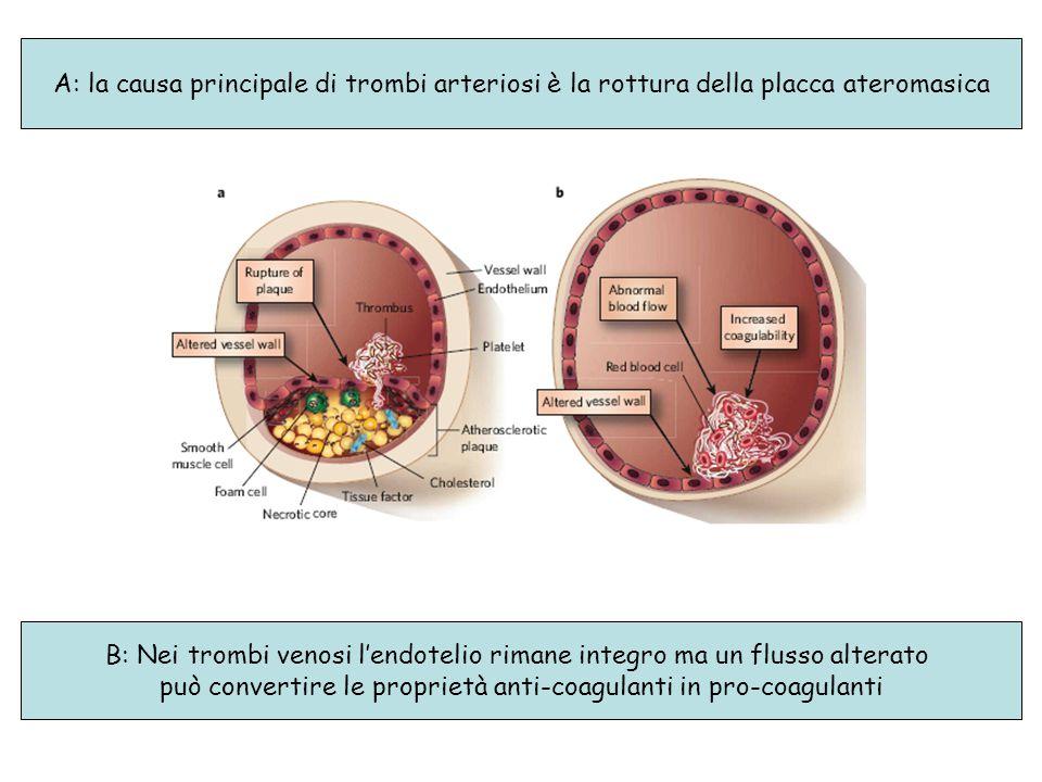 B: Nei trombi venosi l'endotelio rimane integro ma un flusso alterato